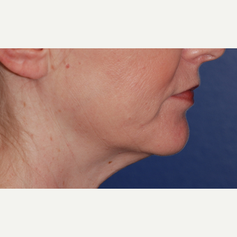 45-54 year old woman treated with Neck Lift before 3625253