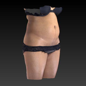 45-54 year old woman treated with SculpSure before 3814615