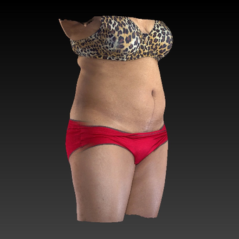 45-54 year old woman treated with SculpSure after 3814615