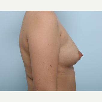 Breast Augmentation before 3425398