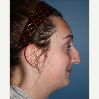 18-24 year old woman treated with Rhinoplasty before 3615471
