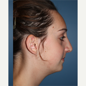 18-24 year old woman treated with Rhinoplasty after 3615471