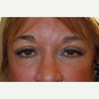 55-64 year old woman treated with Forehead Lift