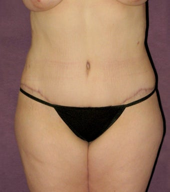 Tummy tuck after 517005