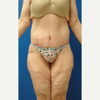 35-44 year old woman treated with belt lipectomy after 2236201