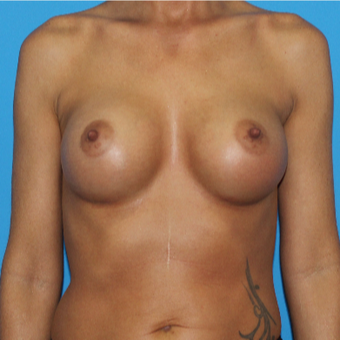 35-44 year old woman treated with Breast Augmentation after 3201551