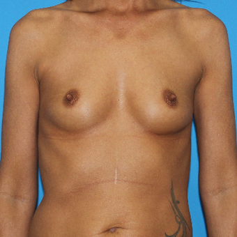 35-44 year old woman treated with Breast Augmentation before 3201551