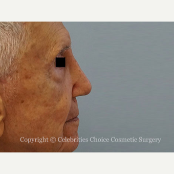 75 and up year old man treated with Revision Rhinoplasty after 3198220