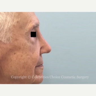 75 and up year old man treated with Revision Rhinoplasty before 3198220