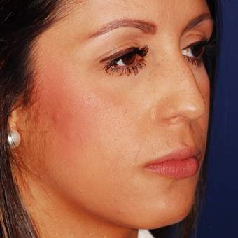 25-34 year old woman treated with Rhinoplasty before 3624303