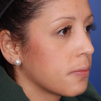 25-34 year old woman treated with Rhinoplasty after 3624303