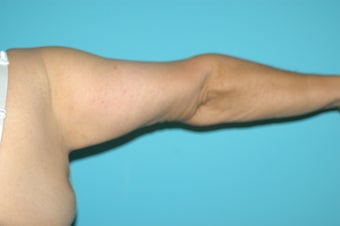 65 Year Old Female - Full Arm Lift 1188478