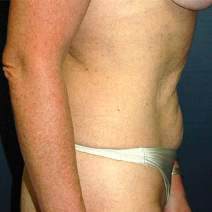 52 year old woman treated with Tummy Tuck before 3578246