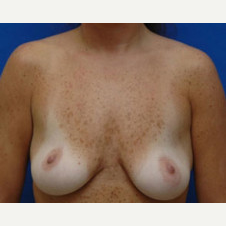35-44 year old woman treated with Breast Lift with Implants before 3423777