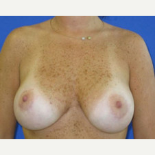 35-44 year old woman treated with Breast Lift with Implants after 3423777