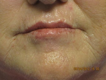 63 year old woman treated in perioral region with restylane  after 852930