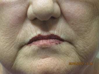 63 year old woman treated in perioral region with restylane  before 852930