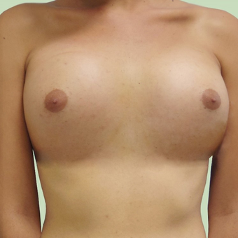 MTF Breast Augmentation after 2707516