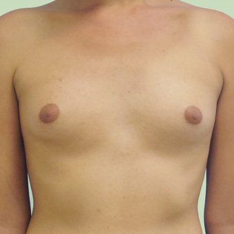 MTF Breast Augmentation before 2707516