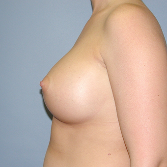 30 year old woman treated with Breast Implants after 3042673