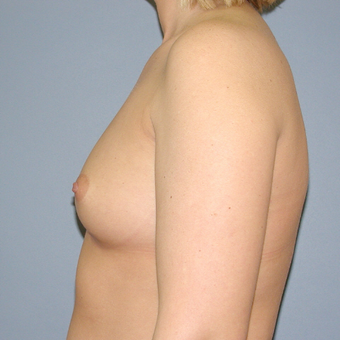 30 year old woman treated with Breast Implants before 3042673