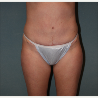 35-44 year old woman treated with Tummy Tuck after 3218328