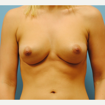 25-34 year old woman treated with Breast Implants after 3071133