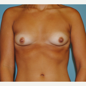 25-34 year old woman treated with Breast Implants before 3071133