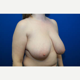 25-34 year old woman treated with Breast Reduction before 3109888