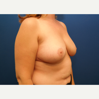 25-34 year old woman treated with Breast Reduction after 3109888