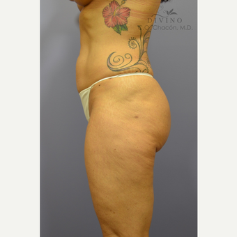 45-54 year old woman treated with Liposuction after 3421490