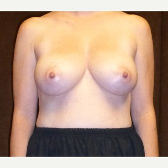 45-54 year old woman treated with Breast Reconstruction before 3616097