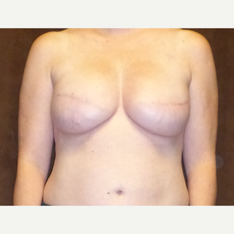45-54 year old woman treated with Breast Reconstruction after 3616097