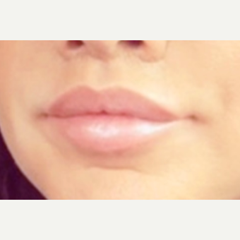 35-44 year old woman treated with Lip Lift after 3043312