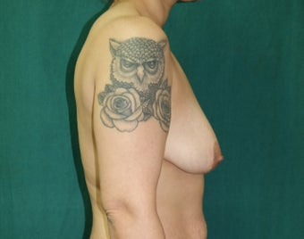 25-34 year old woman treated with Breast Augmentation 3659702