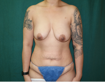 25-34 year old woman treated with Breast Augmentation before 3659702