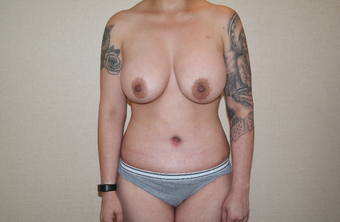 25-34 year old woman treated with Breast Augmentation after 3659702