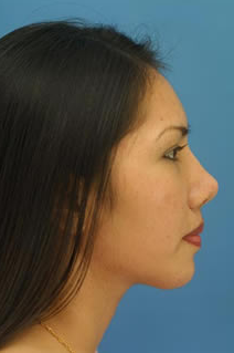Ethnic Rhinoplasty after 1109787