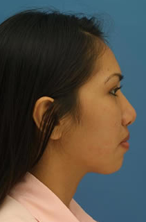 Ethnic Rhinoplasty before 1109787