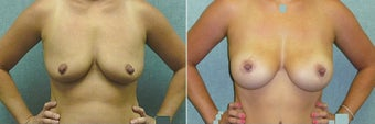 Breast lift with implants before 524808