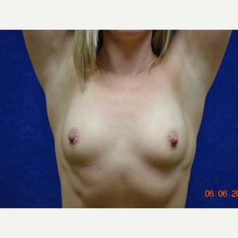 35-44 year old woman treated with Breast Augmentation before 3724946