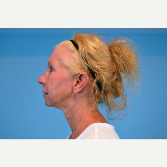 45-54 year old woman treated with Facelift after 3630252