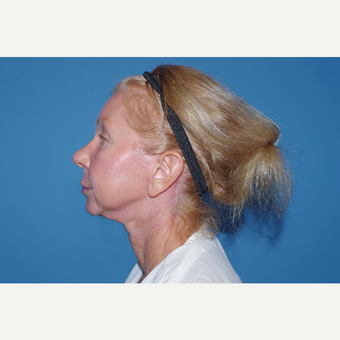 45-54 year old woman treated with Facelift before 3630252