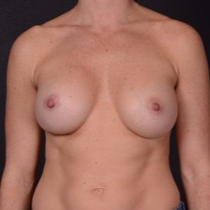 25-34 year old woman treated with Breast Augmentation after 3737521