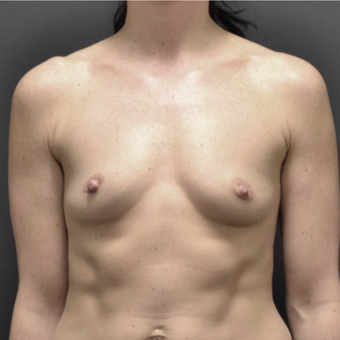 25-34 year old woman treated with Breast Augmentation before 3737521