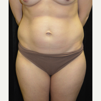 35-44 year old woman treated with Tummy Tuck before 3181805