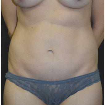 35-44 year old woman treated with Tummy Tuck after 3181805