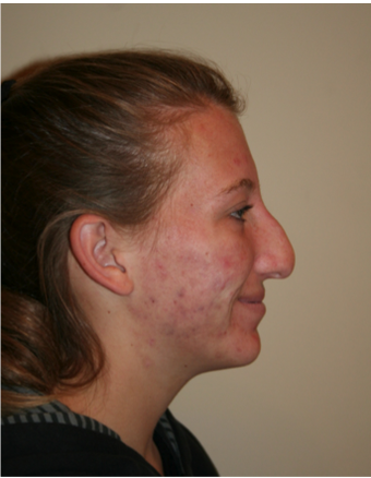 Rhinoplasty before 213163