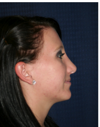 Rhinoplasty after 213163