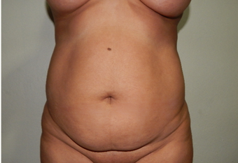 35-44 year old woman treated with Tummy Tuck before 3175243
